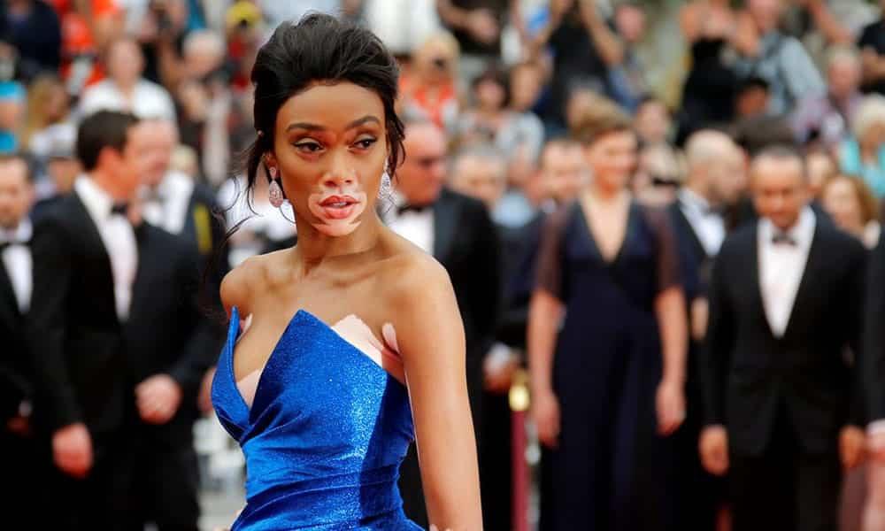 vitiligo Dengan Kondisi Kulitnya, Model Ini Tampil Menawan dan Dapat Menginspirasimu dalam 5 Hal Ini